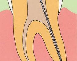 よくある治療の質問にお答えします「根管治療」