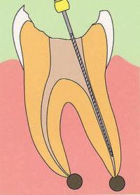 よくある治療の質問にお答えします「根管治療」 ~東久留米 ひばりの森歯科