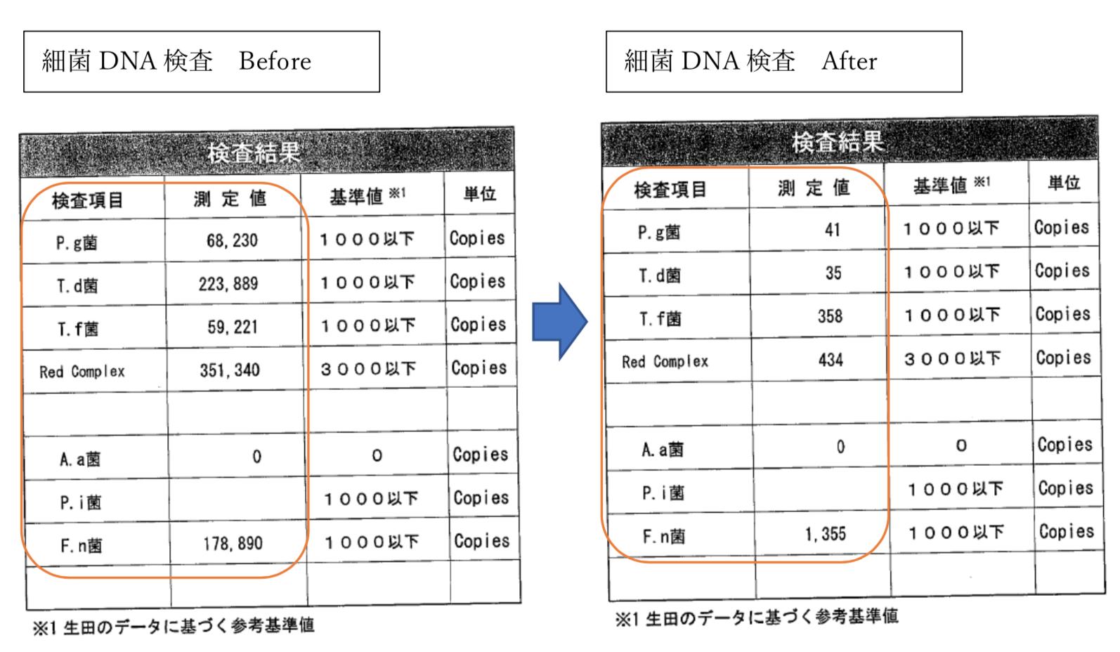 細菌DNA検査